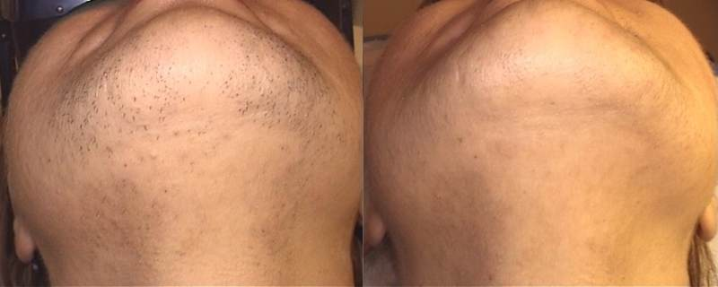 efekt depilacji laserowej
