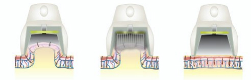 zasada działania lasera lightsheer duet