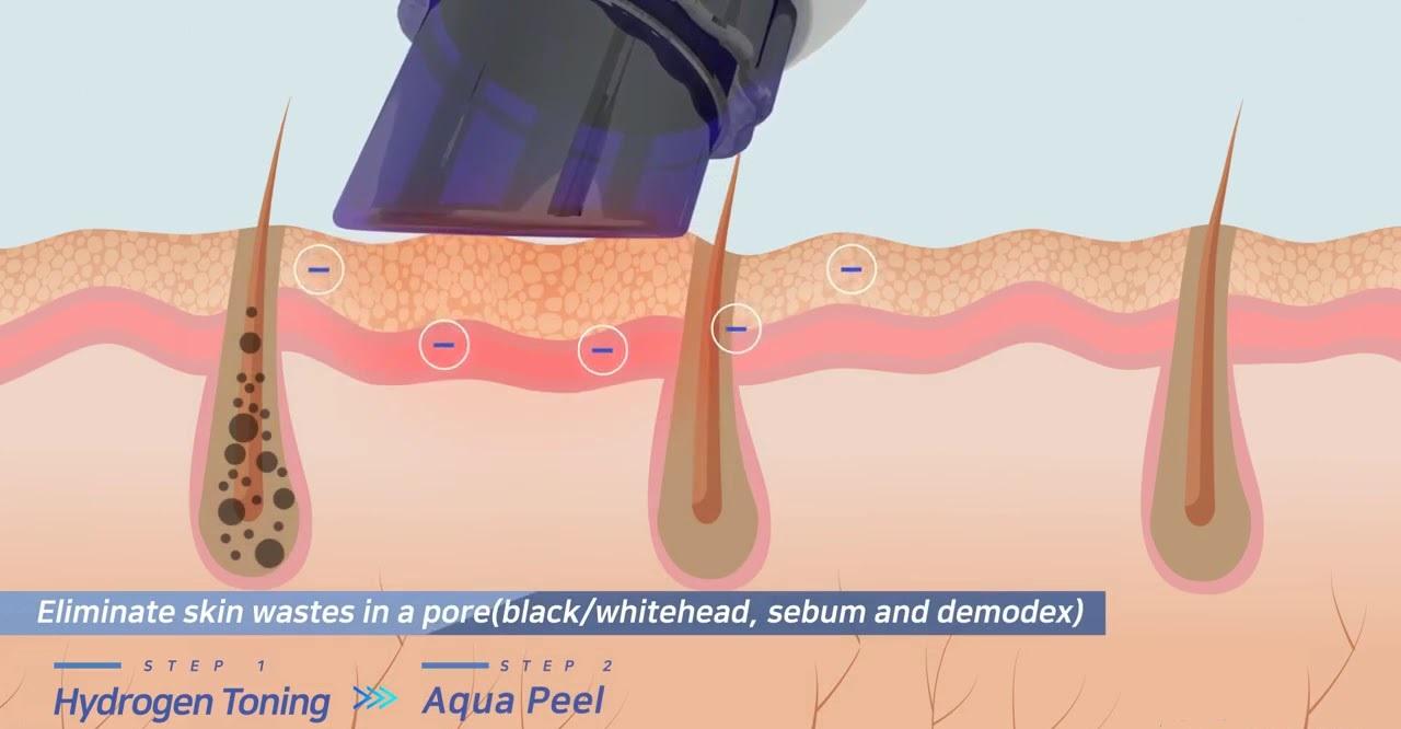 Opis zabiegu oczyszczania wodorowego twarzy